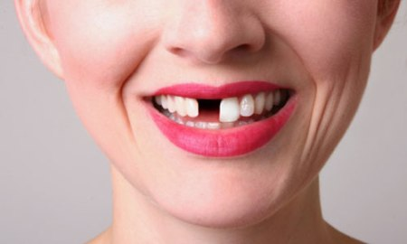 تفسير حلم سقوط الاسنان بدون دم