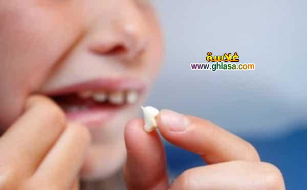 تفسير حلم الاسنان تساقط الاسنان